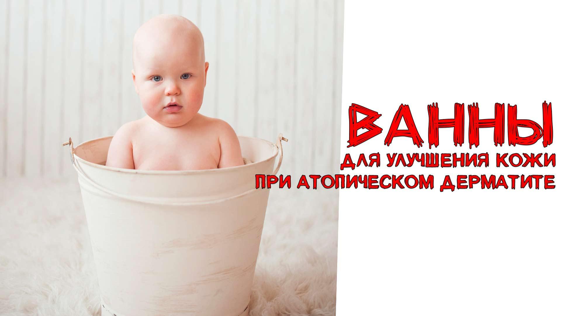 Vanny-dlya-uluchsheniya-kozhi-pri-atopicheskom-dermatite Ванны для улучшения кожи при атопическом дерматите увлажнение кожи овсяные ванны морская соль море дома льняные ванны купание при АД крахмальные ванны атопический дерматит АД